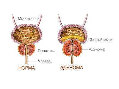 предстательная железа симптомы заболевания