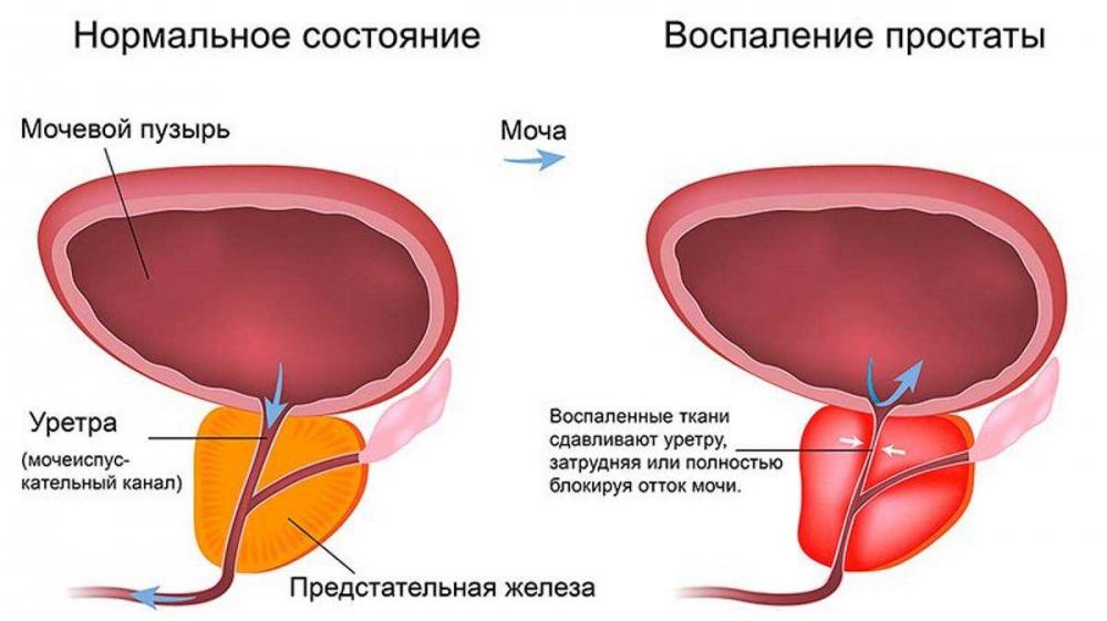 Симптомы цистита у мужчин, лечение и возможные последствия