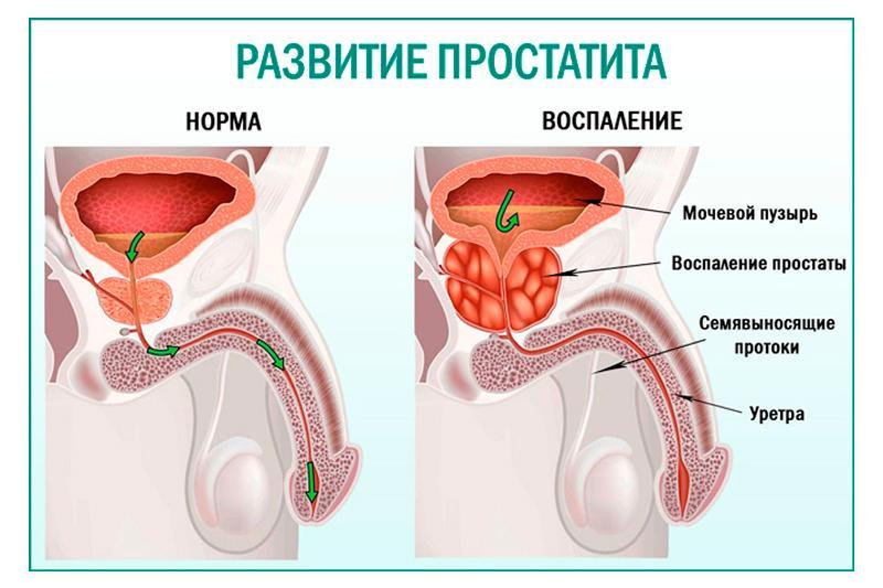 Простатит: причины, симптомы, диагностика и лечение