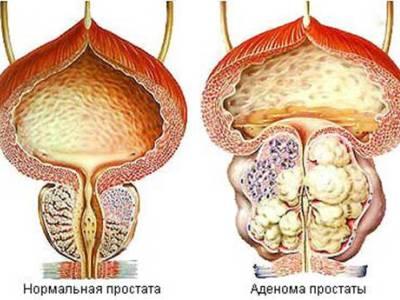 виды хронического простатита