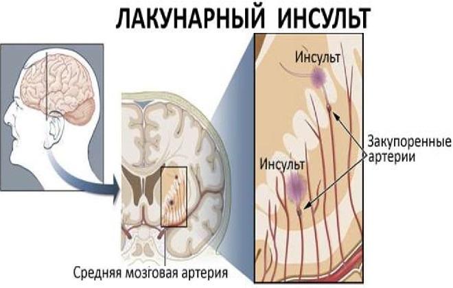 Закупорка средней мозговой артерии