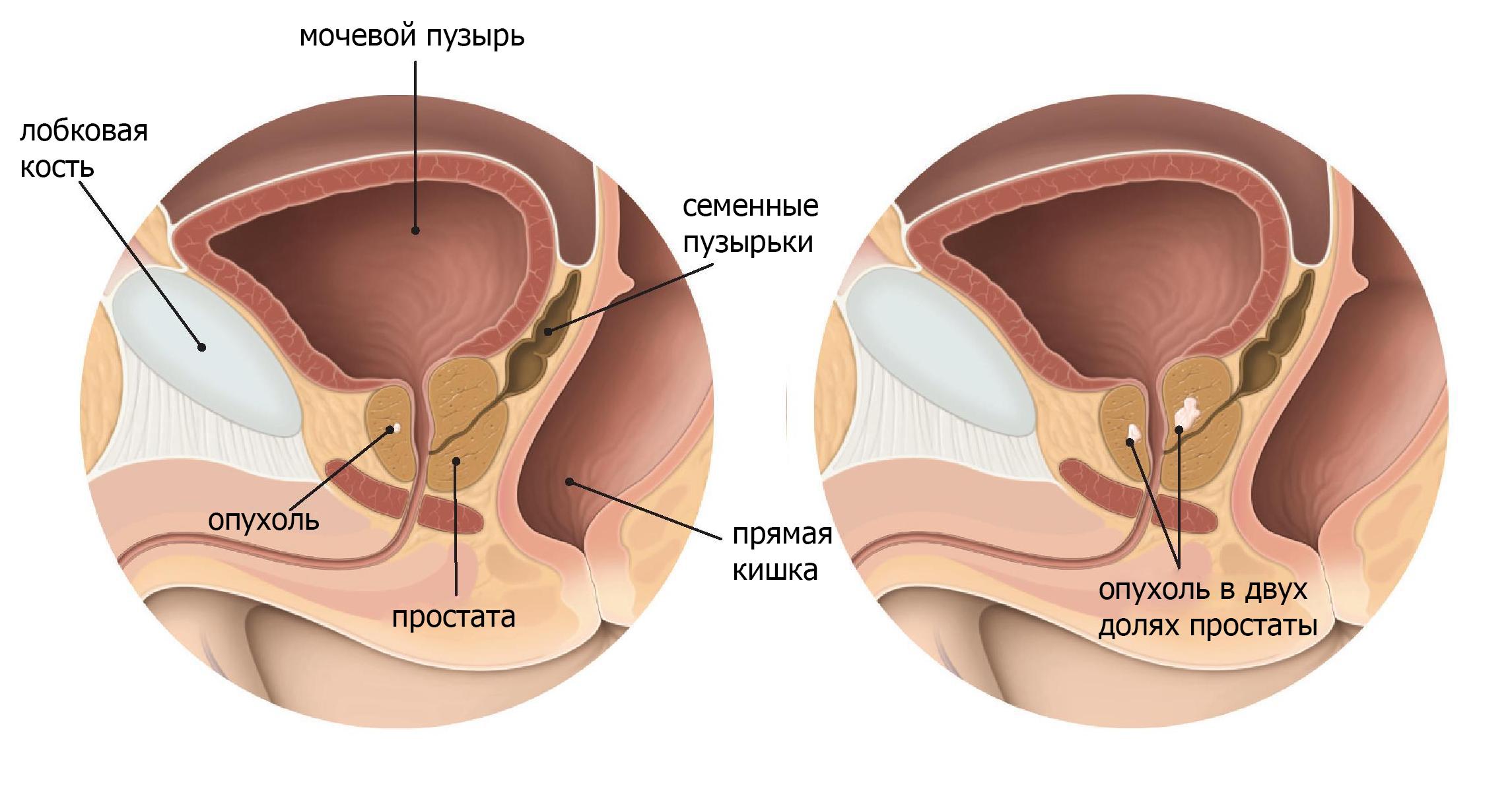 частые мочеиспускания у мужчин без боли лечение