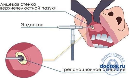 Эндоскопическая гайморотомия