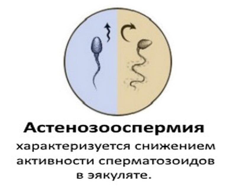 как увеличить активность спермиков