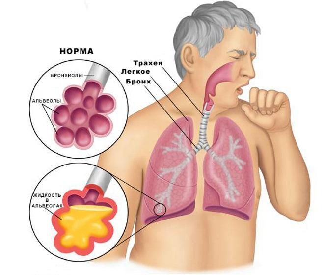 Первые признаки воспаления легких