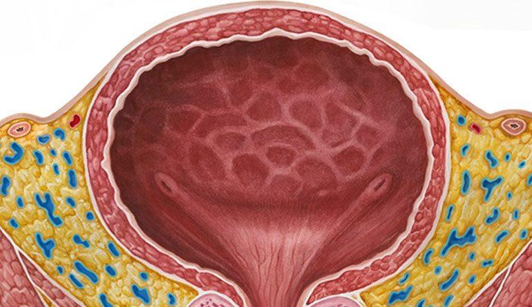 Цистит у женщин: симптомы и лечение воспаления мочевого пузыря