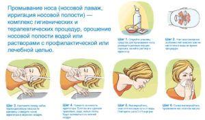 Заболевание синусит симптомы и лечение у взрослых в домашних условиях