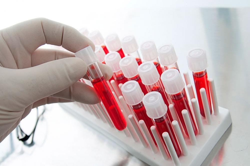 кровь в сперме (главный ключ)