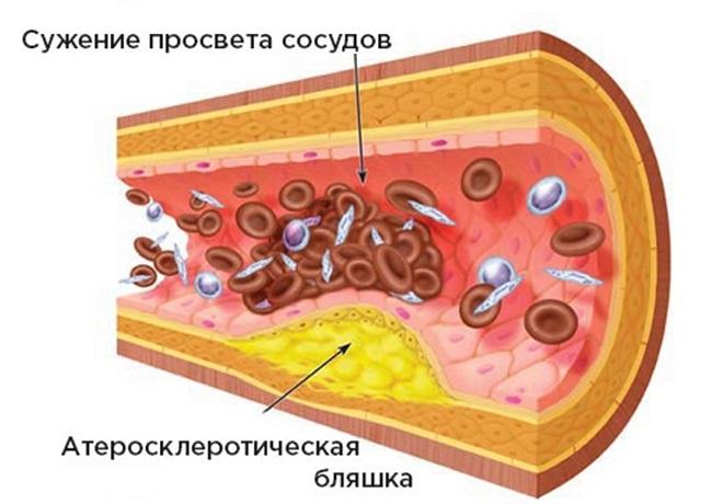 Сужение просвета сосудов атеросклеротической бляшкой