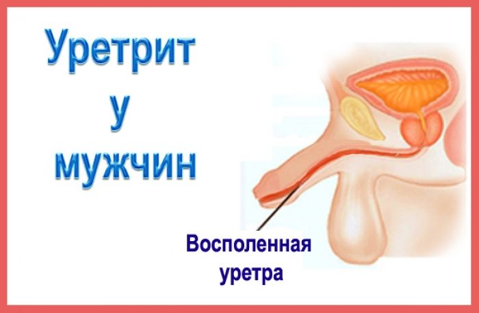 Уретрит у мужчин: симптомы, диагностика, лечение