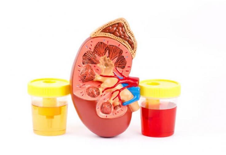 Гематурия: о чем сигнализирует появление крови в моче - Estet-Portal