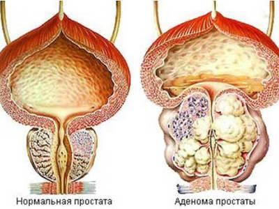 заболевание аденома простаты
