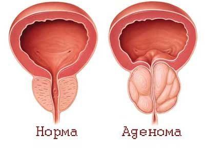 простата и предстательная железа одно и тоже
