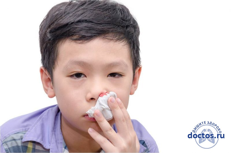 Кровь из носа у детей