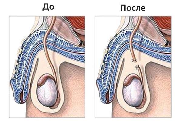 процесс операции вазэктомии