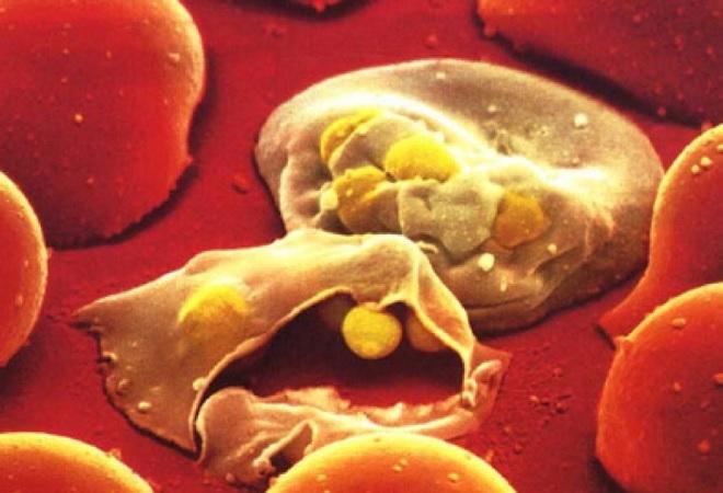 Загноение частиц крови