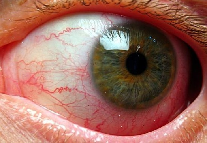 Красный глаз с воспаленными капиллярами