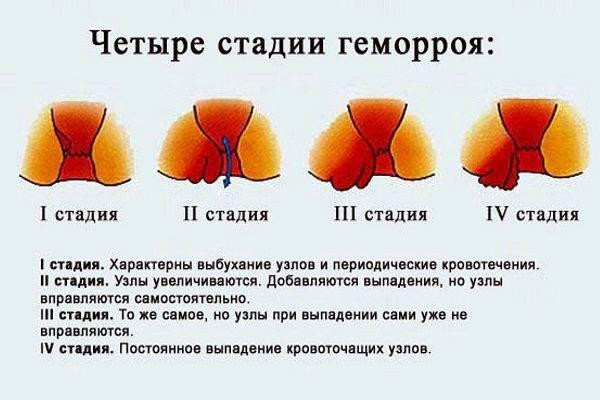 геморрой или простатит