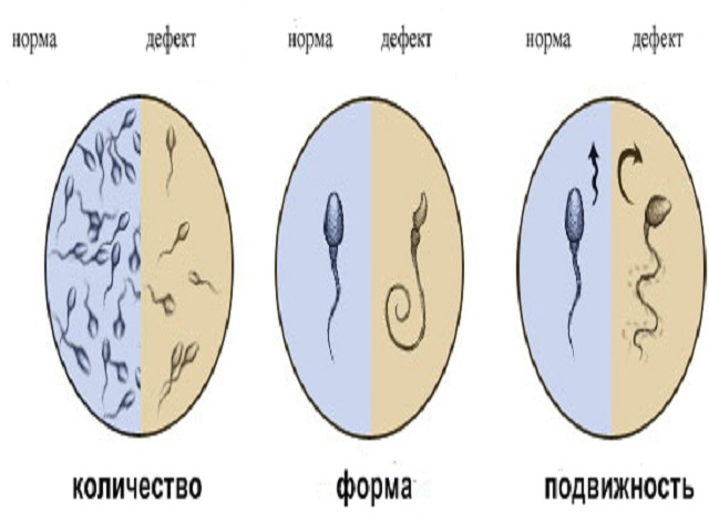 спермограмма в норме показатели