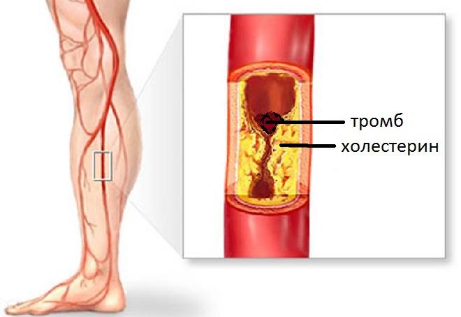 В местах скопления холестерина возрастает риск формирования тромбов