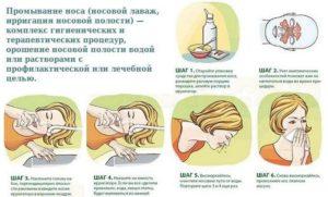 Чем можно промывать нос при насморке