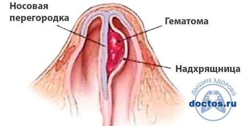Гематома после перелома носа