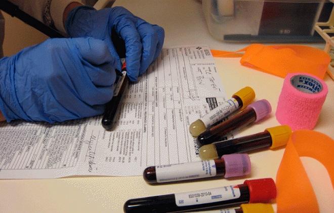 Подписание пробирки с кровью на анализ