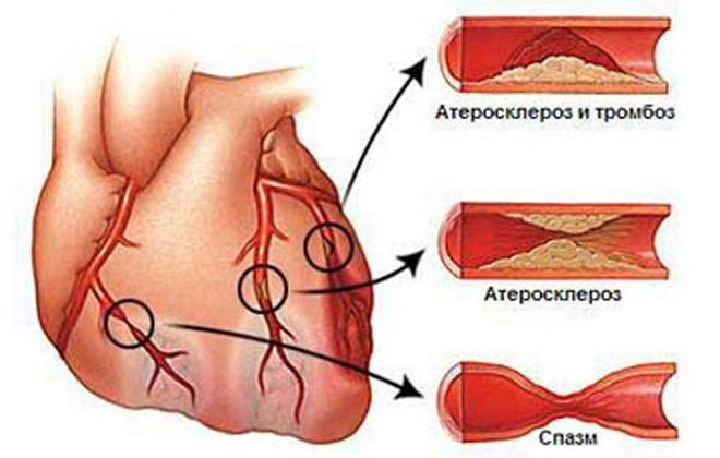 Наглядные признаки атеросклероза