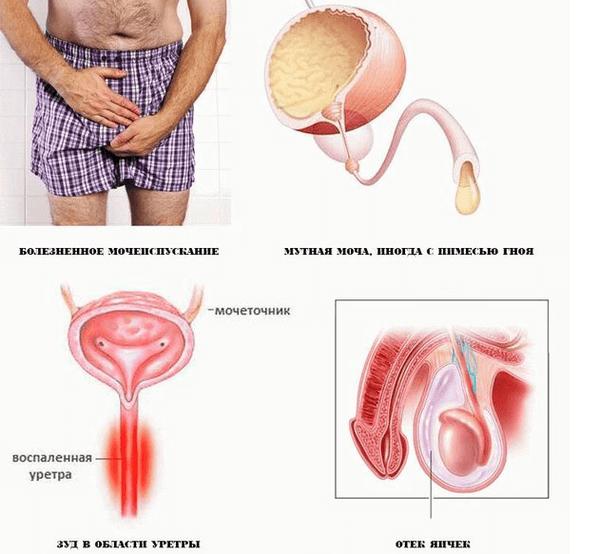 негонорейный уретрит симптомы