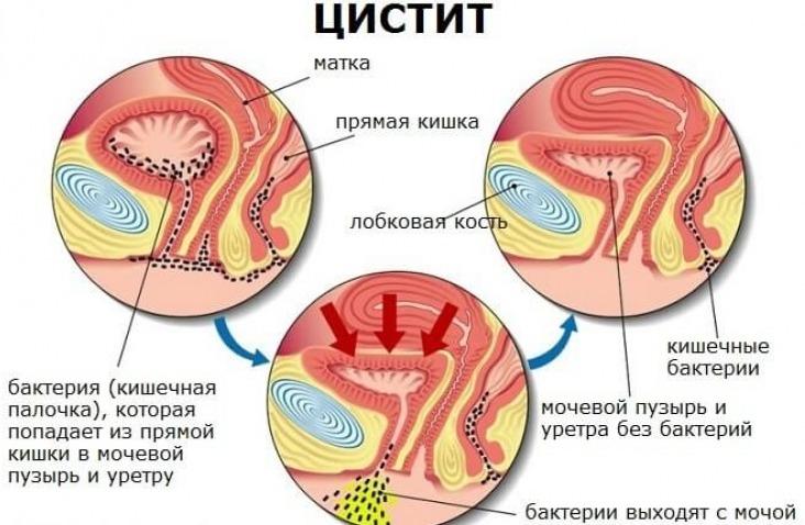 Цистит или скрытый пиелонефрит? Методы диагностики цистита - Estet ...