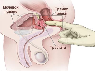 массаж уретры у мужчин в домашних условиях