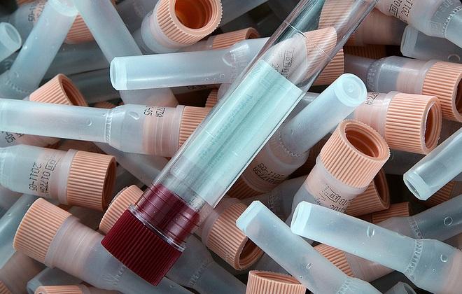 Подготовка приспособлений на взятие образца крови на иммунодефицит