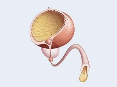 афала от простатита
