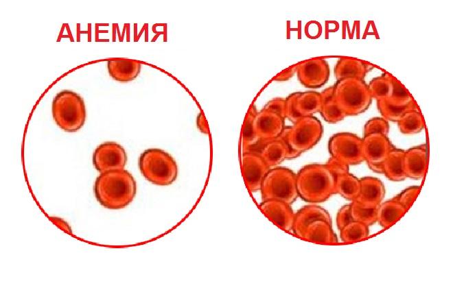 Сравнение крови здоровых людей и заболевших анемией