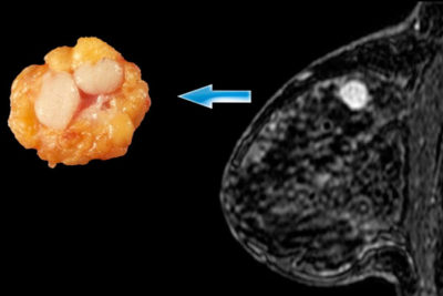 эхопризнаки хронического простатита