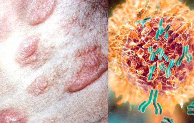 Неходжкинская лимфома