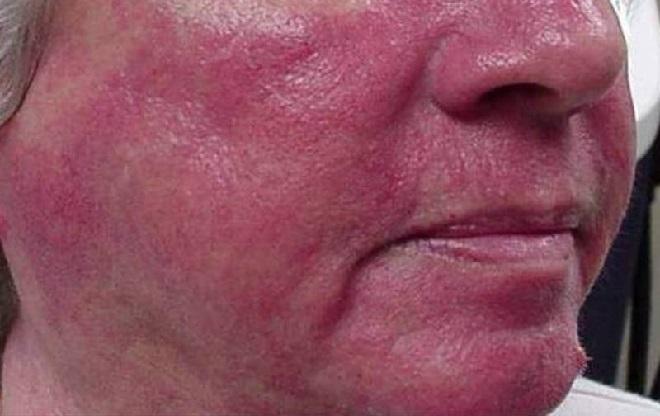 Красное лицо от расширения капилляров