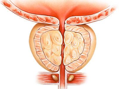 последствия биопсии предстательной железы