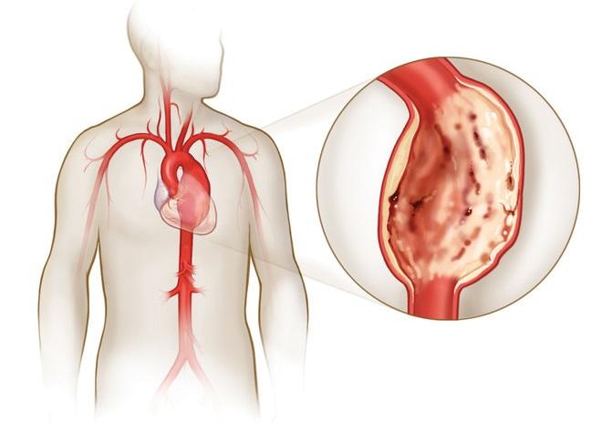 Патология аорты в грудной части