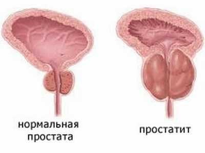 болезни предстательной железы и их лечение