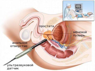 биопсия простаты как беречься после операции