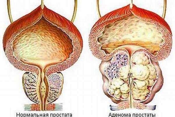 как отличить геморрой от простатита