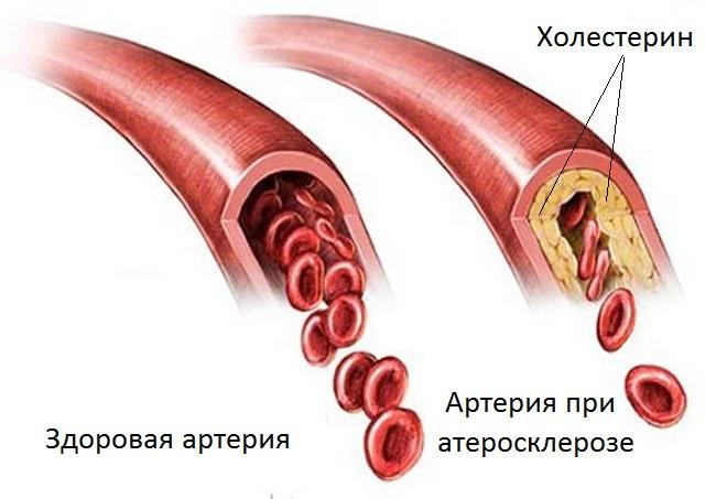 Здоровая и забитая холестерином артерии