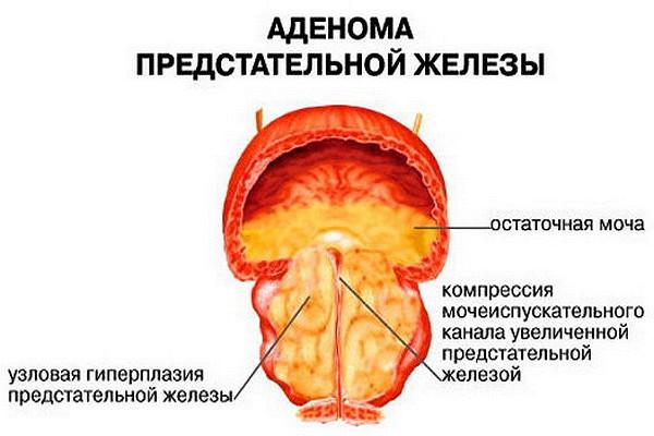 лечение простатита малышева