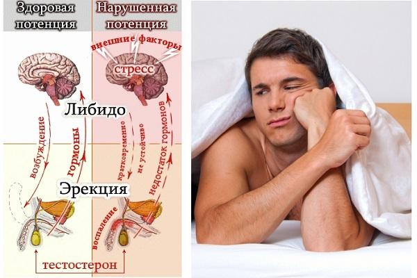 эрекция и заболевания