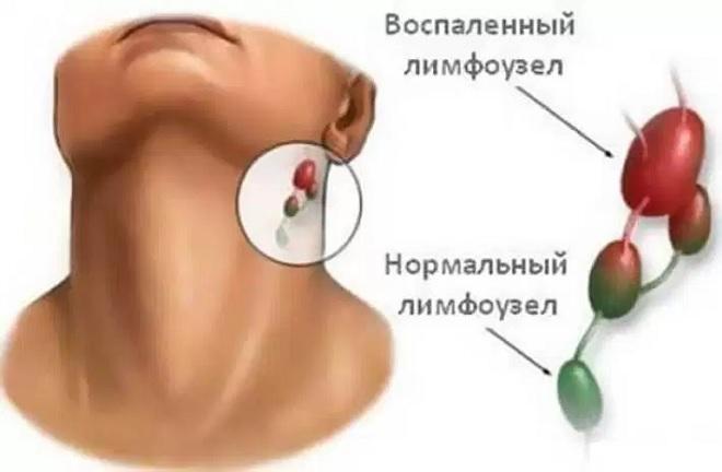 Воспаление лимфоузлов в области горла