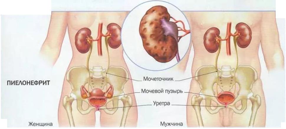 Пиелонефрит - симптомы, лечение - Медицинский центр