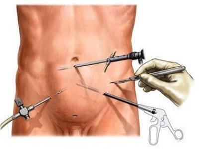 хирургическое лечение аденомы