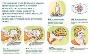 Можно ли промывать нос Хлоргексидином при насморке и как это делать