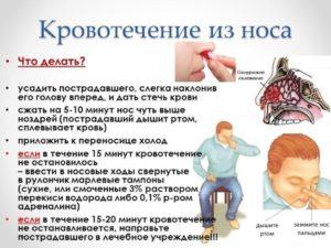 Причины носовых кровотечений